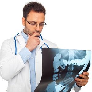 Dottore e radiografia intestinale